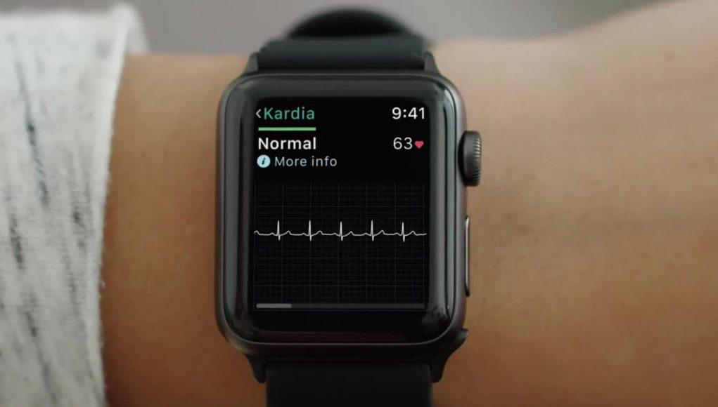 ECG Apple Watch Series 4